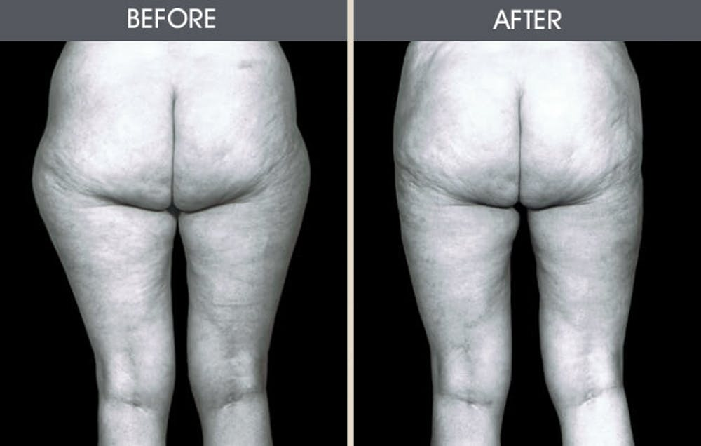 Liposuction Gallery - Patient 2207230 - Image 1
