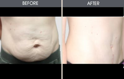 Tummy Tuck Gallery - Patient 2207231 - Image 1