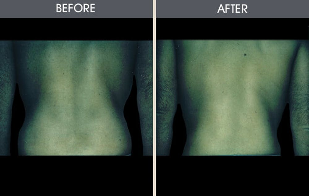 Liposuction Gallery - Patient 2207232 - Image 1