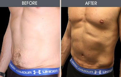 Tummy Tuck Gallery - Patient 2207233 - Image 1