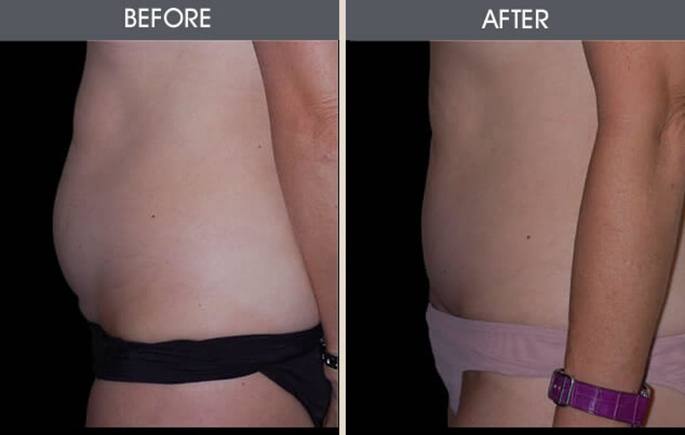 Tummy Tuck Gallery - Patient 2207236 - Image 1