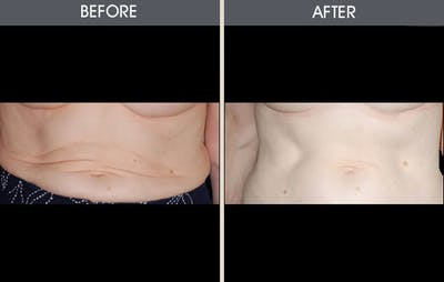 Tummy Tuck Gallery - Patient 2207238 - Image 1