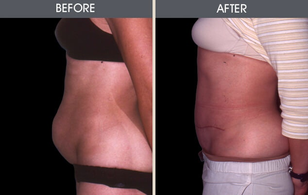 Tummy Tuck Gallery - Patient 2207241 - Image 1