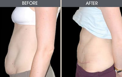 Tummy Tuck Gallery - Patient 2207244 - Image 1