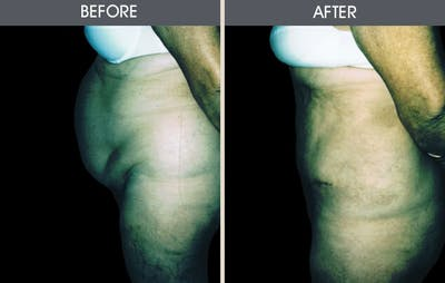 Tummy Tuck Gallery - Patient 2207246 - Image 1