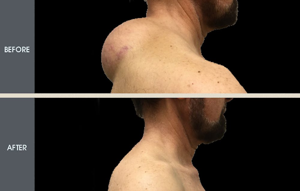 Lipoma Removal Gallery - Patient 2207248 - Image 1