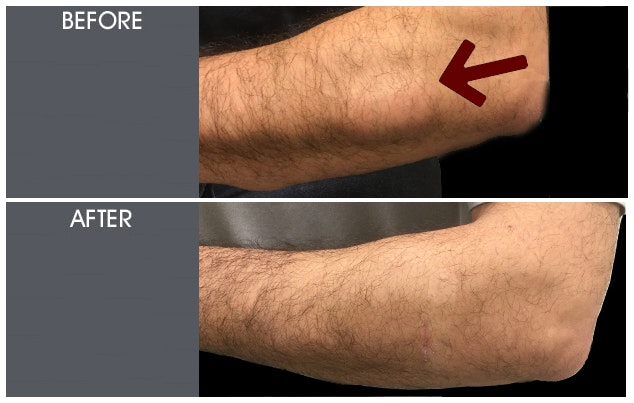 Lipoma Removal Gallery - Patient 2207277 - Image 1