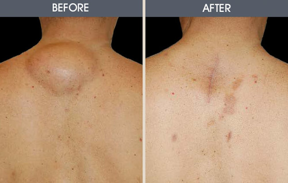 Lipoma Removal Gallery - Patient 2207294 - Image 1