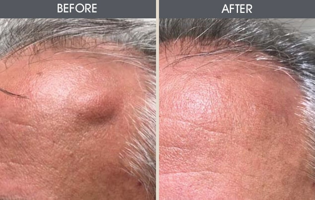 Lipoma Removal Gallery - Patient 2207324 - Image 1