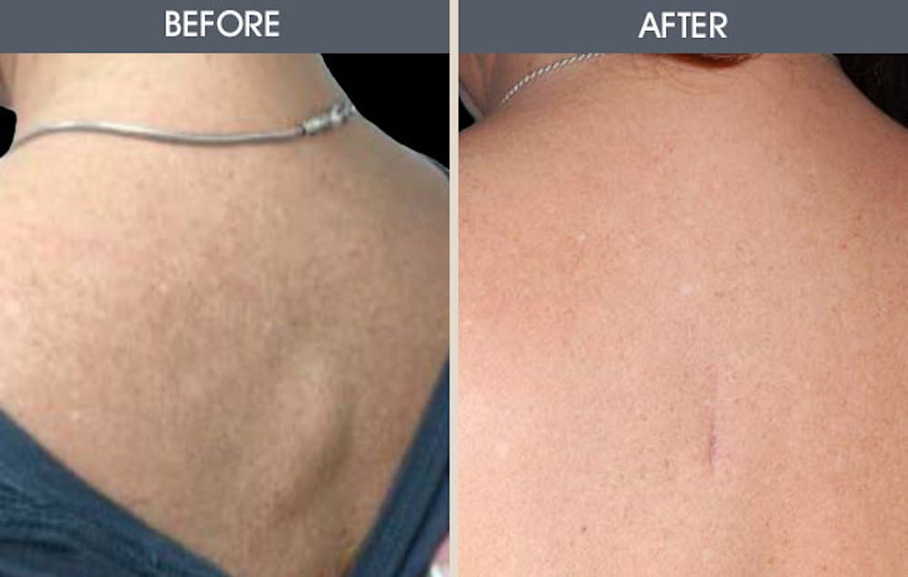Lipoma Removal Gallery - Patient 2207369 - Image 1