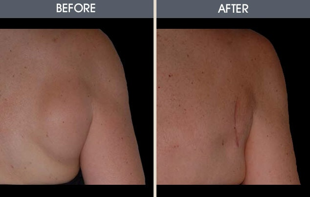 Lipoma Removal Gallery - Patient 2207392 - Image 1