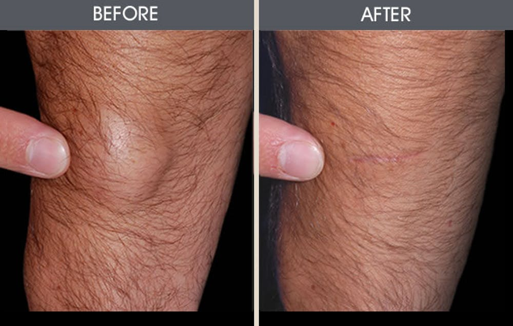 Lipoma Removal Gallery - Patient 2207457 - Image 1