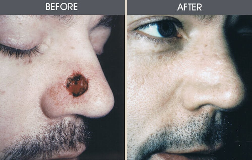 Skin Cancer Reconstruction Gallery - Patient 2207462 - Image 1