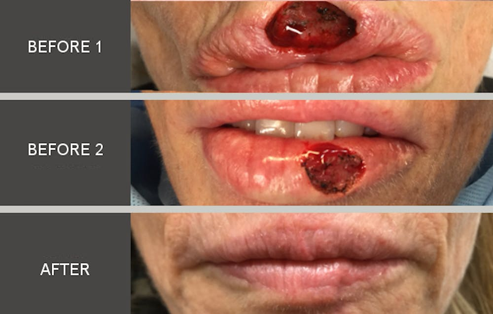 Skin Cancer Reconstruction Gallery - Patient 2207509 - Image 1