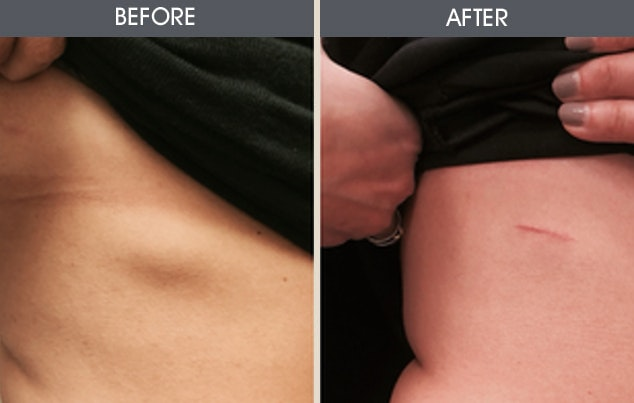 Lipoma Removal Gallery - Patient 2207510 - Image 1