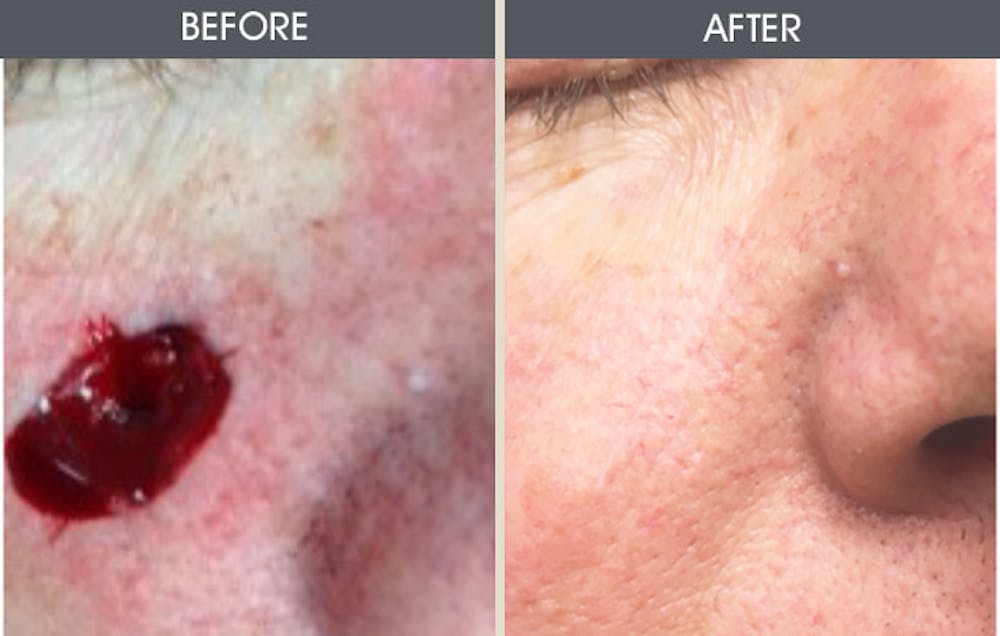 Skin Cancer Reconstruction Gallery - Patient 2207523 - Image 1