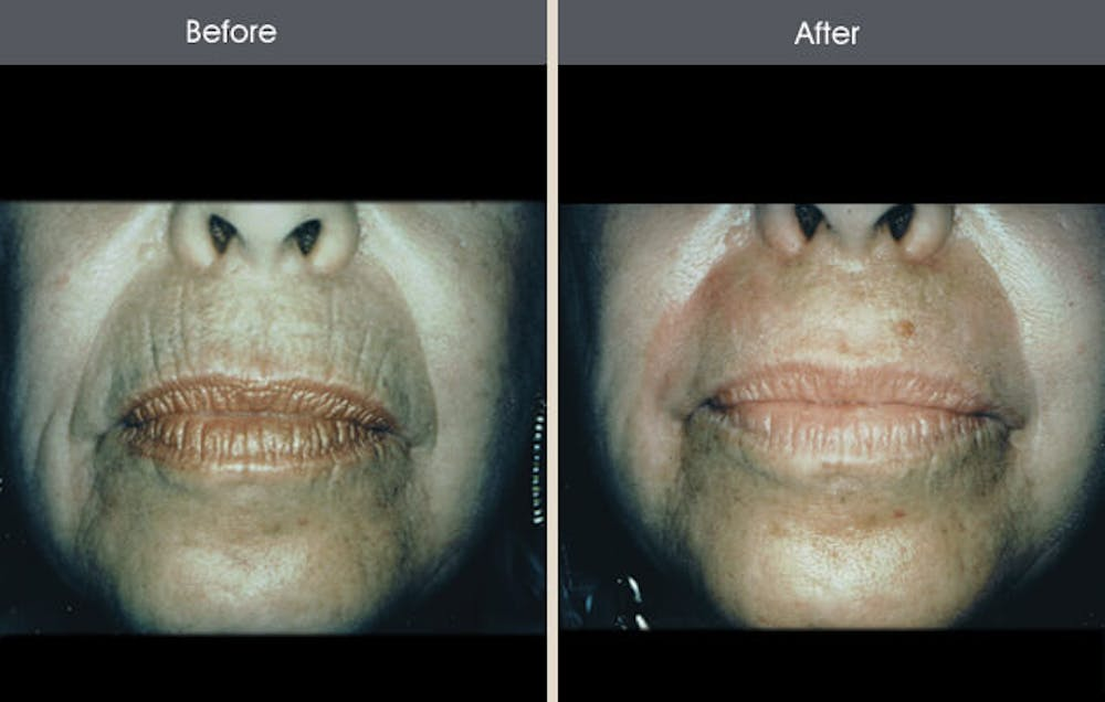 Chemical Peel Gallery - Patient 2207586 - Image 1