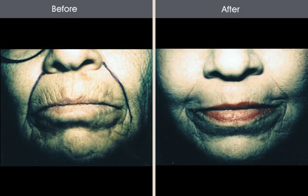 Chemical Peel Gallery - Patient 2207609 - Image 1
