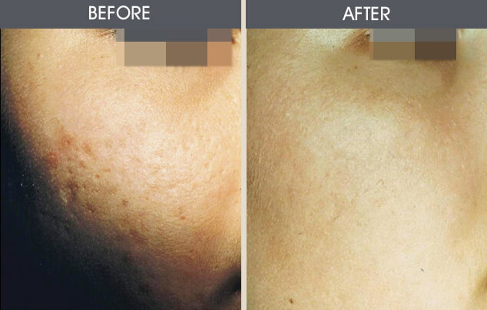 Dermabrasion Gallery - Patient 2207623 - Image 1