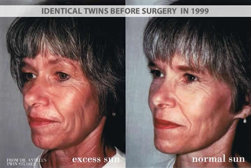 Identical twins before plastic surgery in 1999