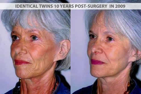 Identical twins 10 years after plastic surgery in 2009