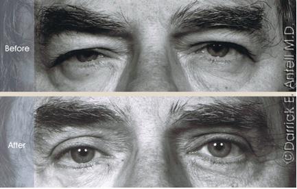 Blepharoplasty surgery with eyelid lift
