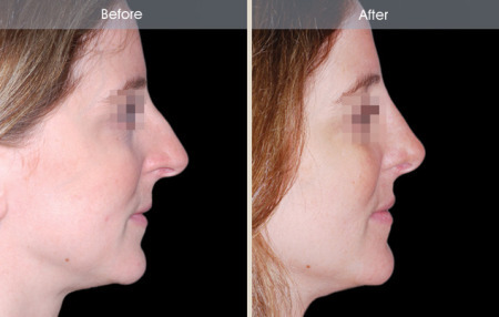 Rhinoplasty before and after female patient