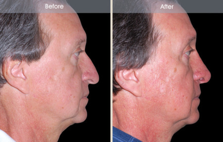 Rhinoplasty before and after male patient