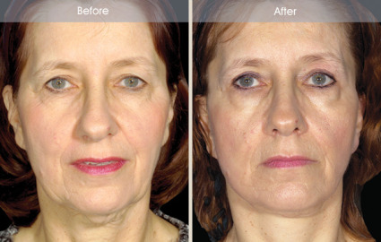 Female Facelift before and after front view