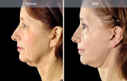 Female facelift before and after side view