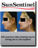 Article in which Dr. Antell discusses the importance of chin implants