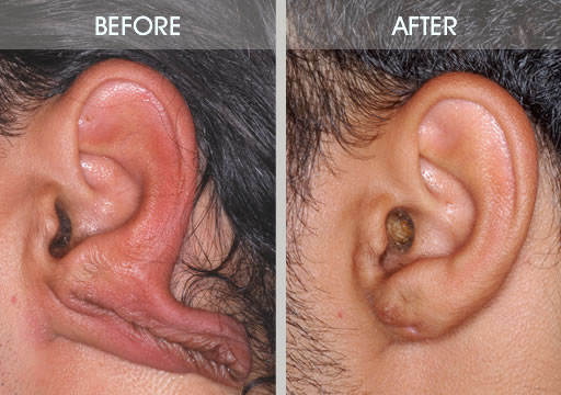 Earlobe repair surgery before and after case 2