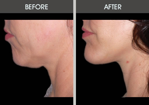 Before and after photo of a woman who had chin implant surgery