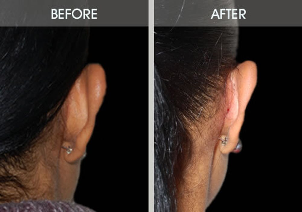 Ear Surgery Gallery - Patient 2206537 - Image 3