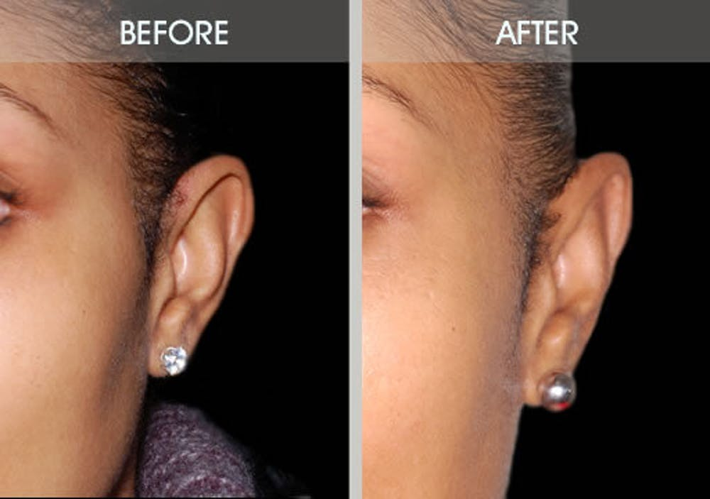 Ear Surgery Gallery - Patient 2206537 - Image 4
