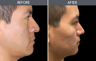 Rhinoplasty Gallery - Patient 2206417 - Image 2