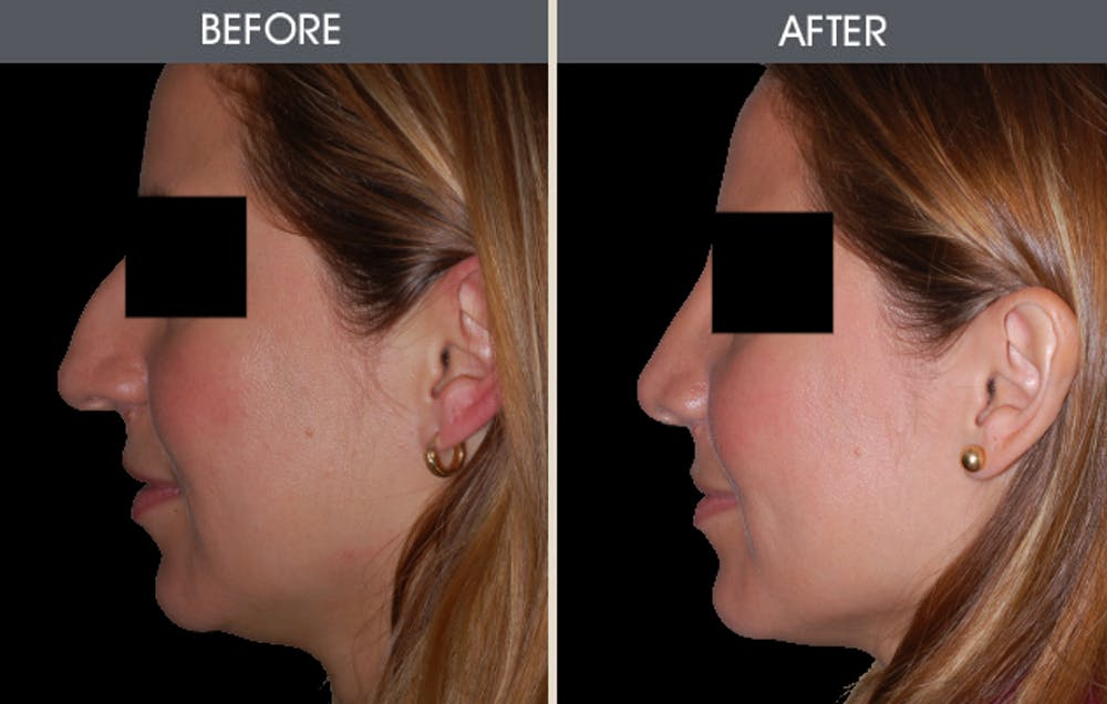 Rhinoplasty Gallery - Patient 2206458 - Image 2