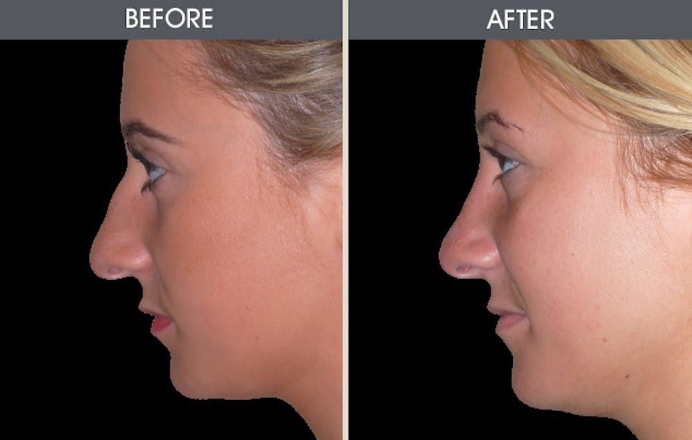 Rhinoplasty Gallery - Patient 2206498 - Image 2