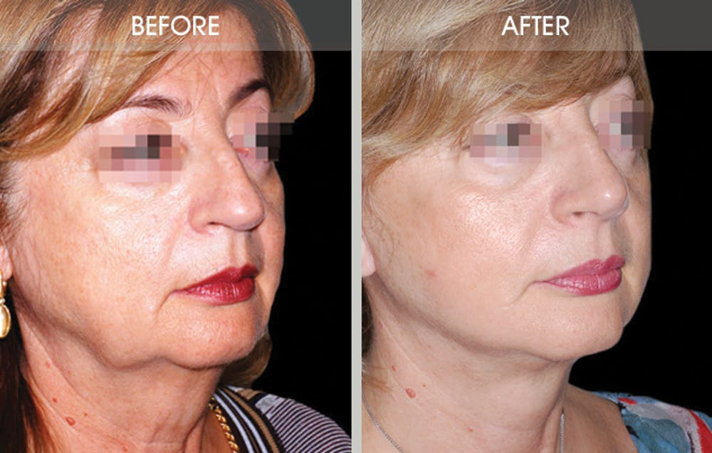 Rhinoplasty Gallery - Patient 2206539 - Image 2