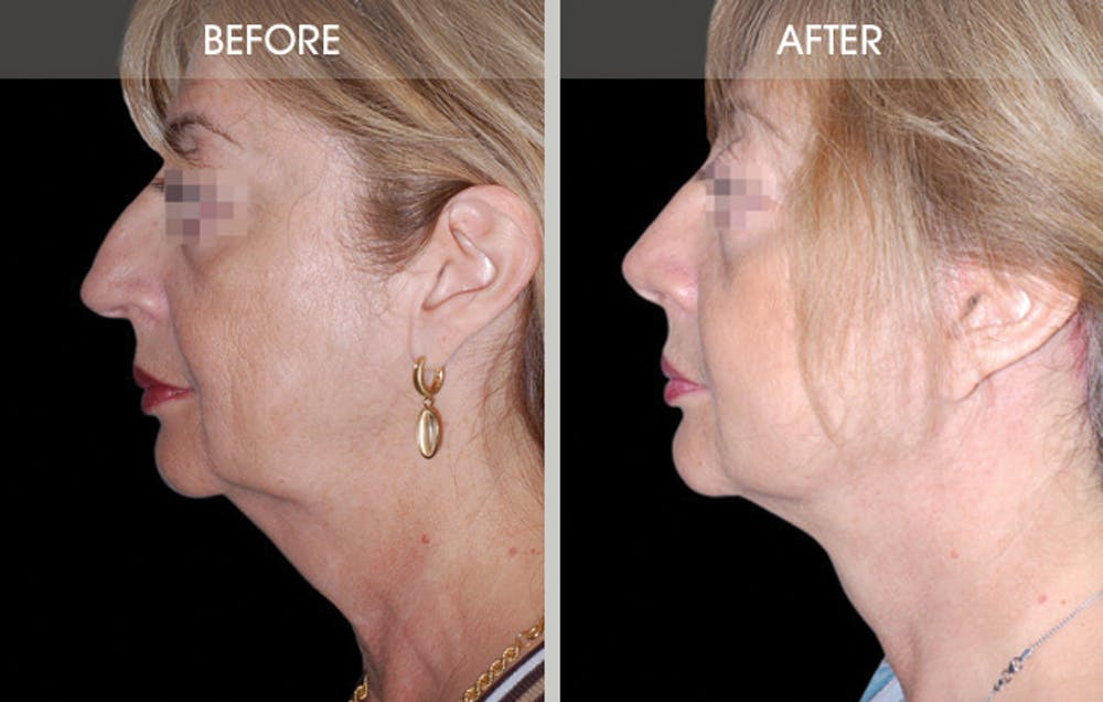 Rhinoplasty Gallery - Patient 2206539 - Image 3