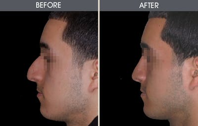 Rhinoplasty Gallery - Patient 2206571 - Image 2