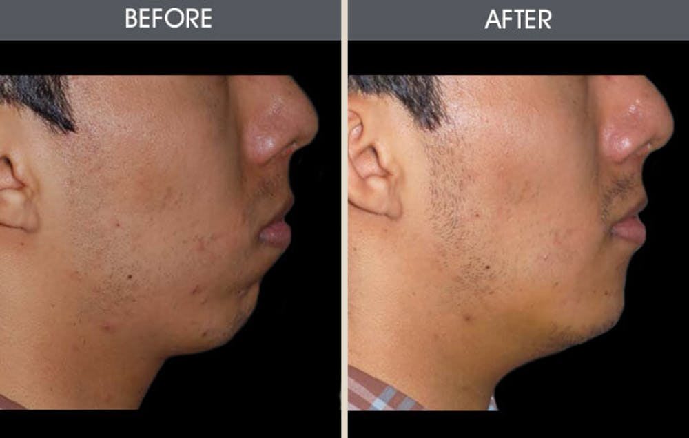 Chin Implants Gallery - Patient 2206752 - Image 2