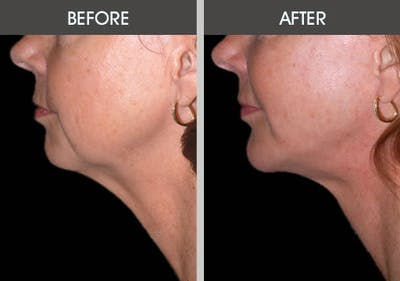 Chin Implants Gallery - Patient 2206771 - Image 2