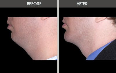 Chin Implants Gallery - Patient 2206773 - Image 2