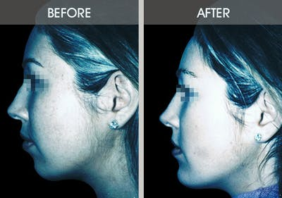 Buccal Fat Removal Gallery - Patient 2207141 - Image 2