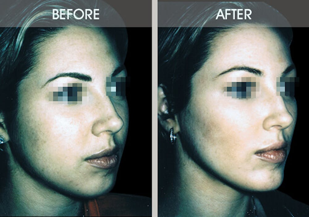 Buccal Fat Removal Gallery - Patient 2207141 - Image 3