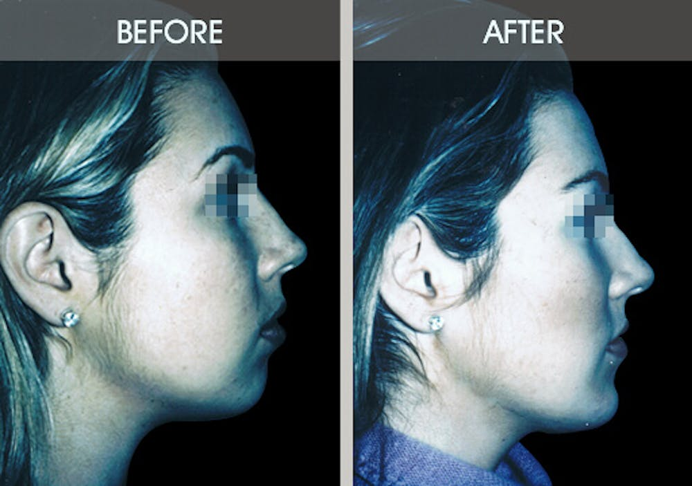 Buccal Fat Removal Gallery - Patient 2207141 - Image 4