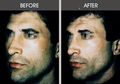 Buccal Fat Removal Gallery - Patient 2207145 - Image 2