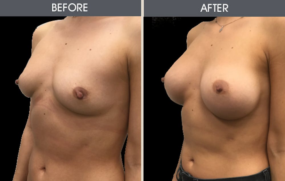 Breast Augmentation Gallery - Patient 2207153 - Image 2