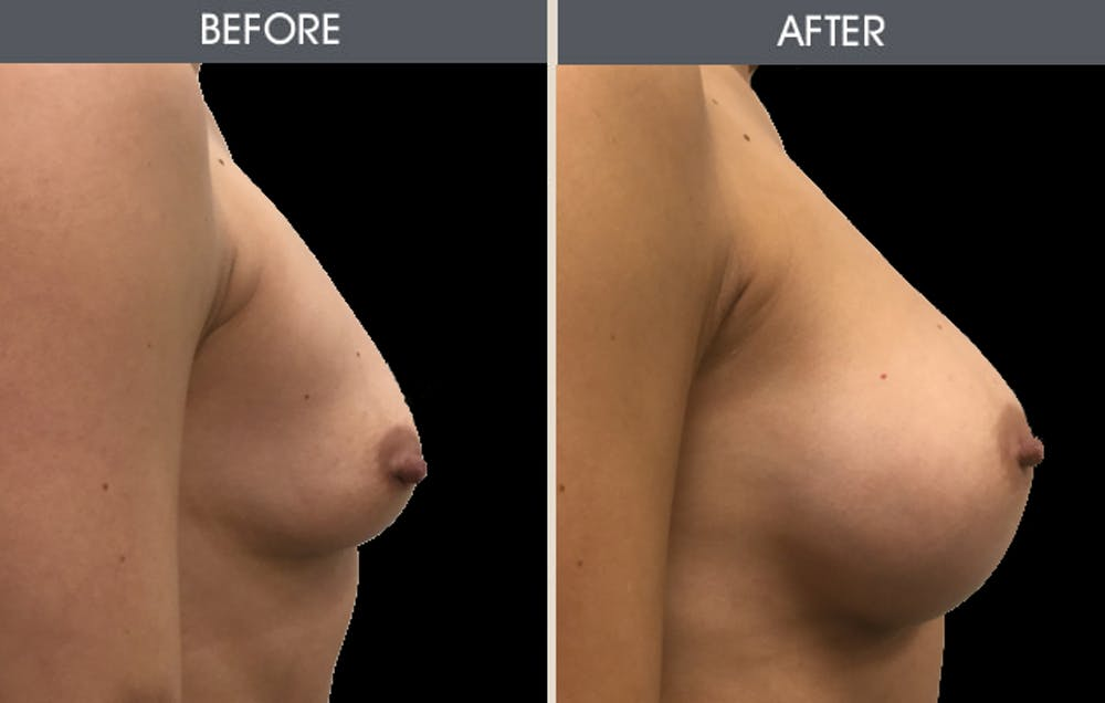 Breast Augmentation Gallery - Patient 2207153 - Image 3